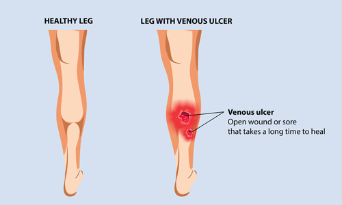 This image has an empty alt attribute; its file name is best-Leg-Ulcers-treatment-cost-in-hyderabad.png